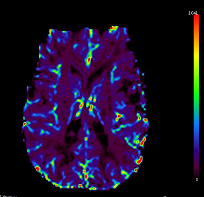 IB Neuro - MR DSC perfusion processing