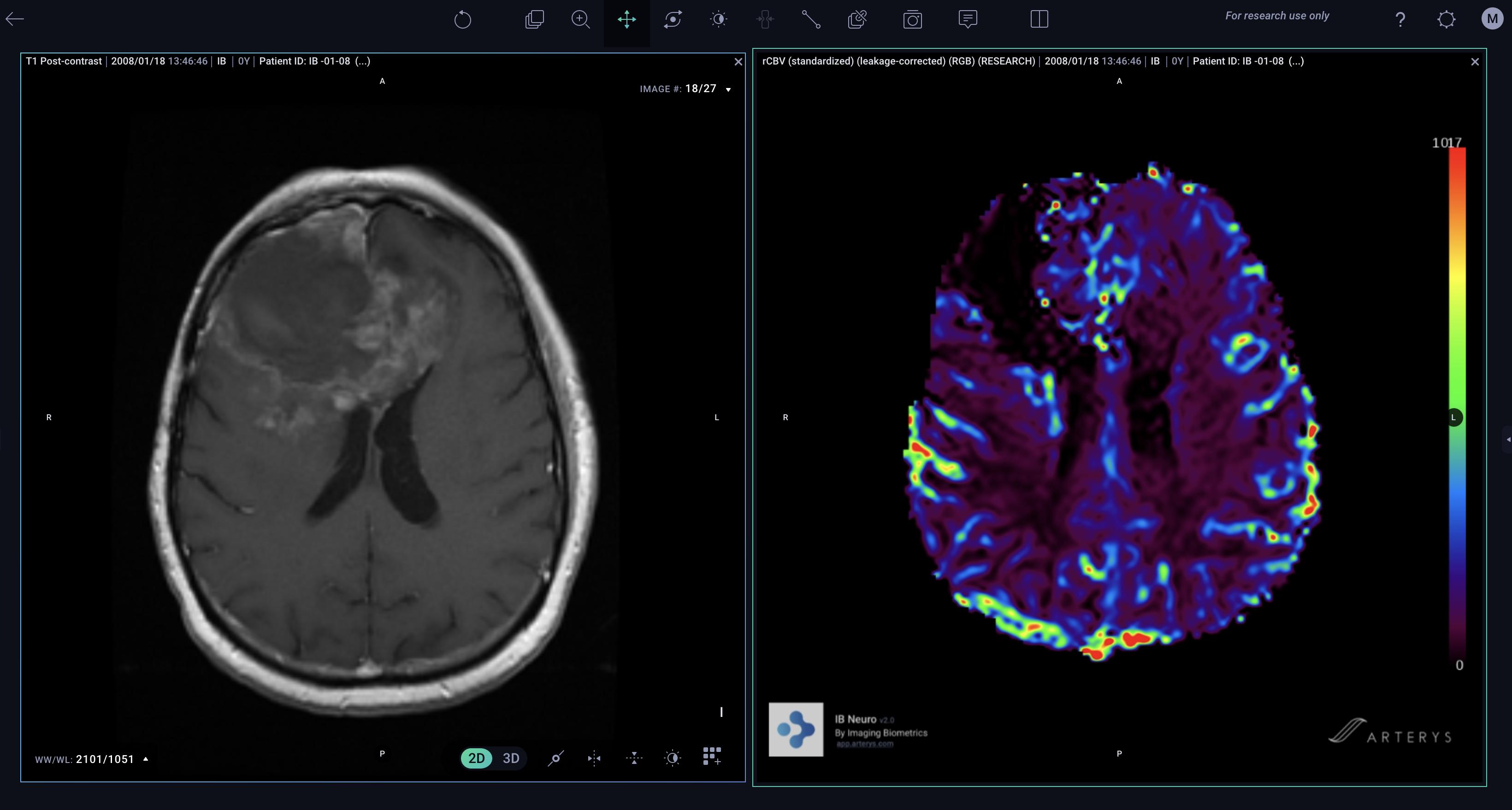 Brain tumor diagnostic on MR