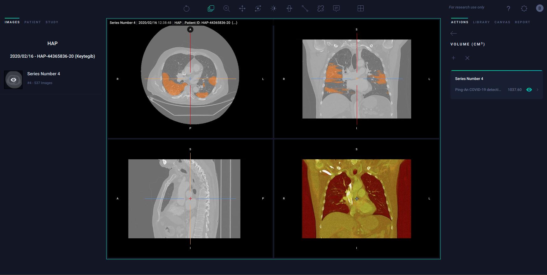 COVID-19 lesion segmentation