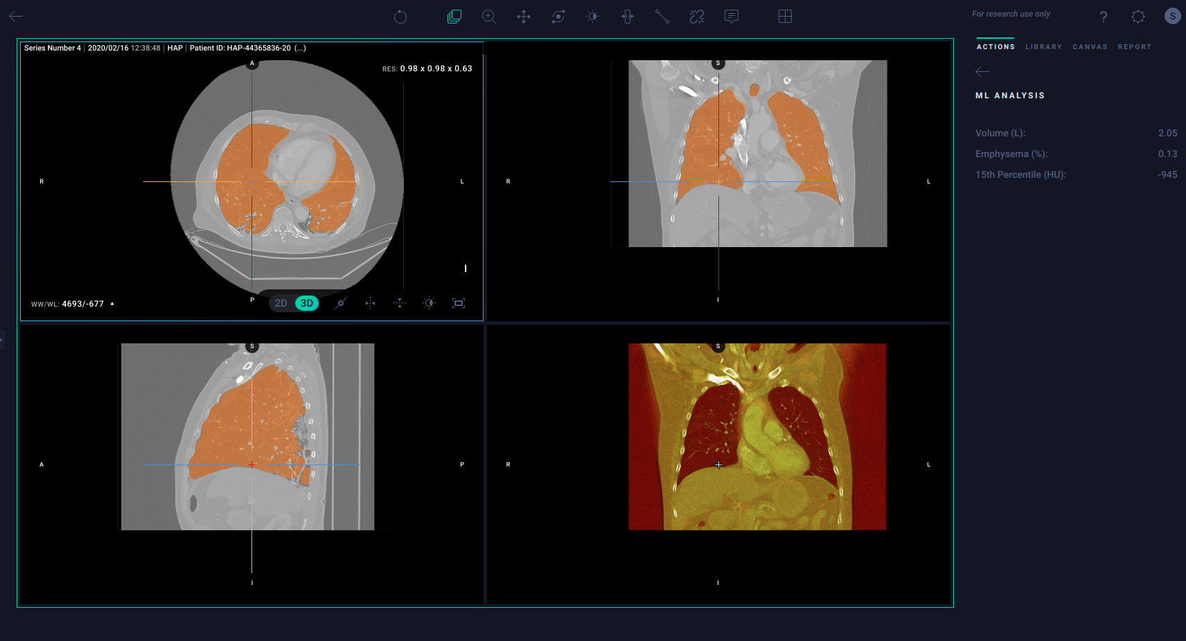 Segmentation and characterization of lung parenchyma