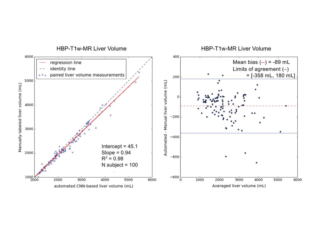 UCSDwholeliversegmentation-Curves